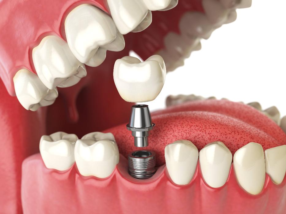 dental implant in Sugar Land